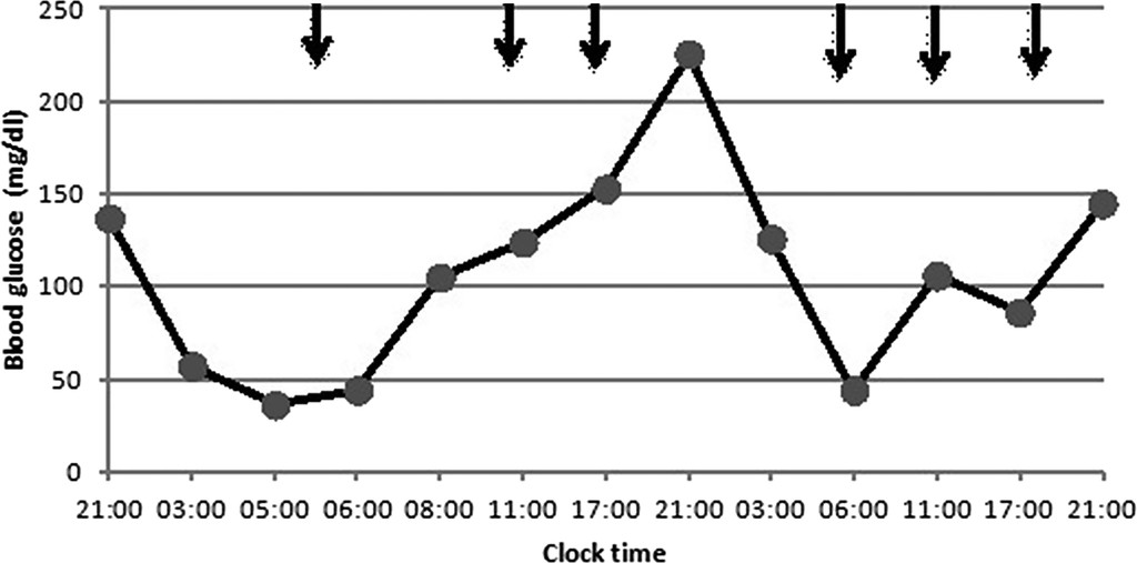 Hyperinsulinemic hypoglycemia associated with insulin